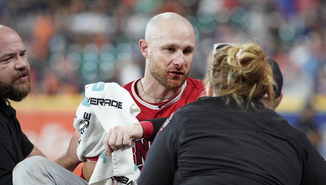 Los Angeles Angels' Jonathan Lucroy, center, is carted off the field after colliding with Houst ...