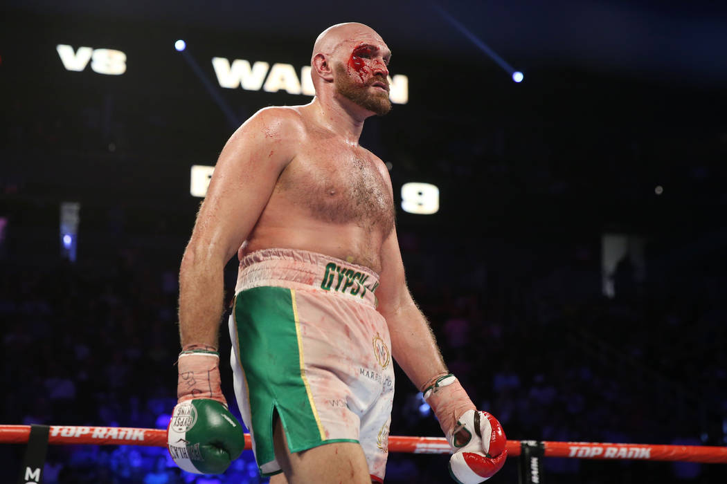 Tyson Fury walks to his corner after the ninth round against Otto Wallin in the heavyweight bou ...