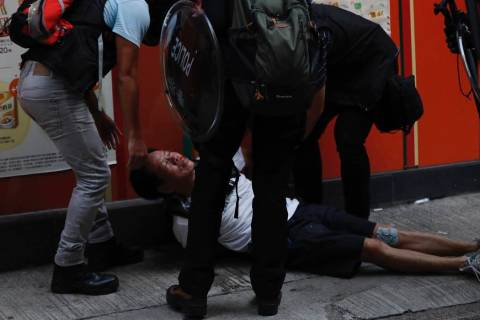 An injured anti-government protester is attended to by others during a clash with police in Hon ...