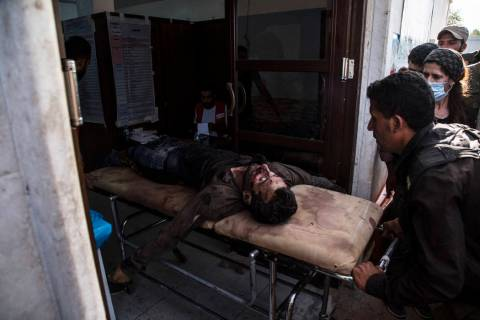 A man wounded in Turkish shelling is brought to Tal Tamr hospital in north Syria, Monday, Oct. ...