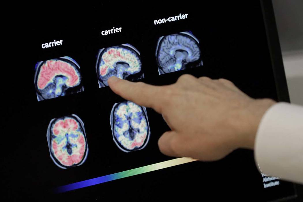 Dr. William Burke goes over a PET brain scan at Banner Alzheimers Institute in Phoenix, Aug. 14 ...