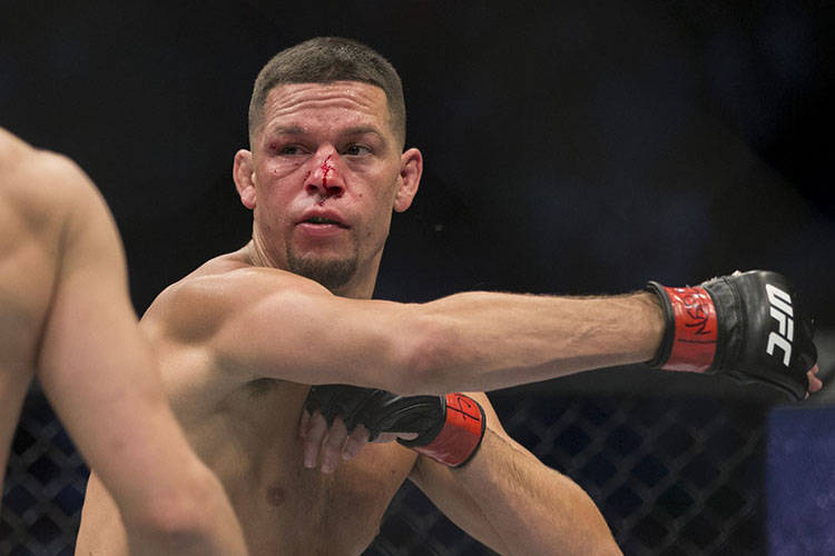 The fight between Nate Diaz, shown in an Aug. 20, 2016, file photo, and Jorge Masvidal will go ...