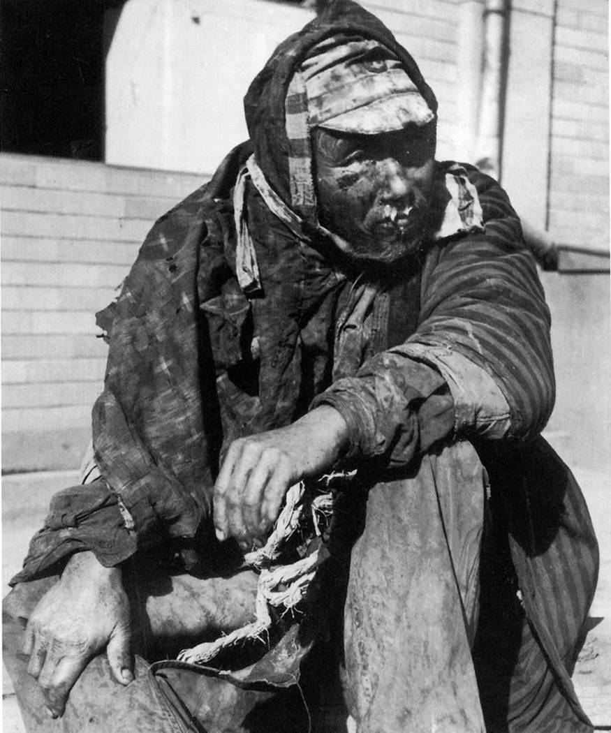 A badly burned Japanese man sits on the steps of a building that was turned into a hospital in ...