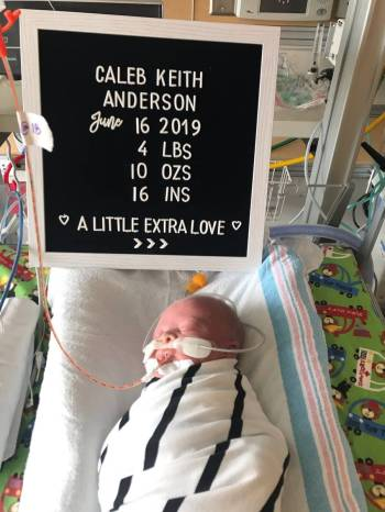 Caleb Anderson was born prematurely at 34 weeks. Doctors said he stopped growing inside the wom ...