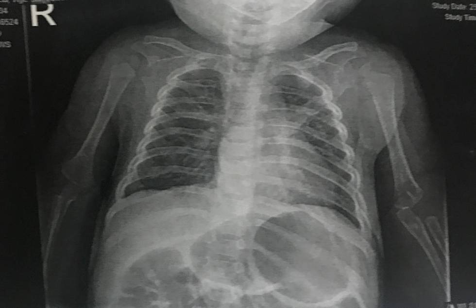 Caleb Anderson's chest X-ray, taken on Wednesday, March 25, 2020, at Summerlin Hospital Medical ...