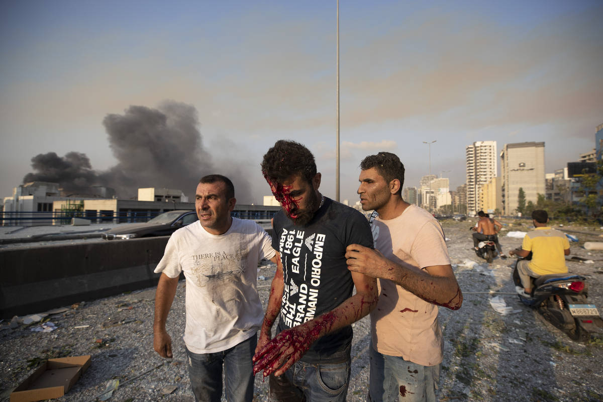 People help a man wounded in a massive explosion in Beirut, Lebanon, Tuesday, Aug. 4, 2020. Mas ...